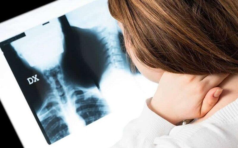 انحناء العمود الفقري | الأسباب والعوامل المؤثرة