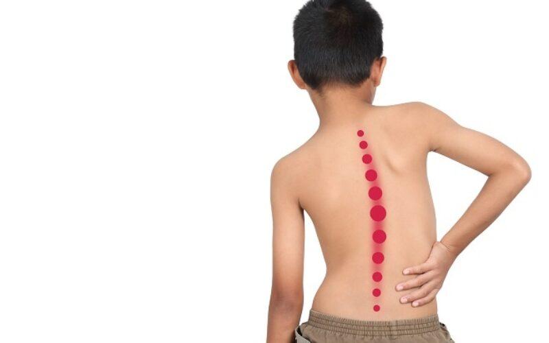 اعوجاج العمود الفقري عند الاطفال | كل ما تلزمك معرفته عنه