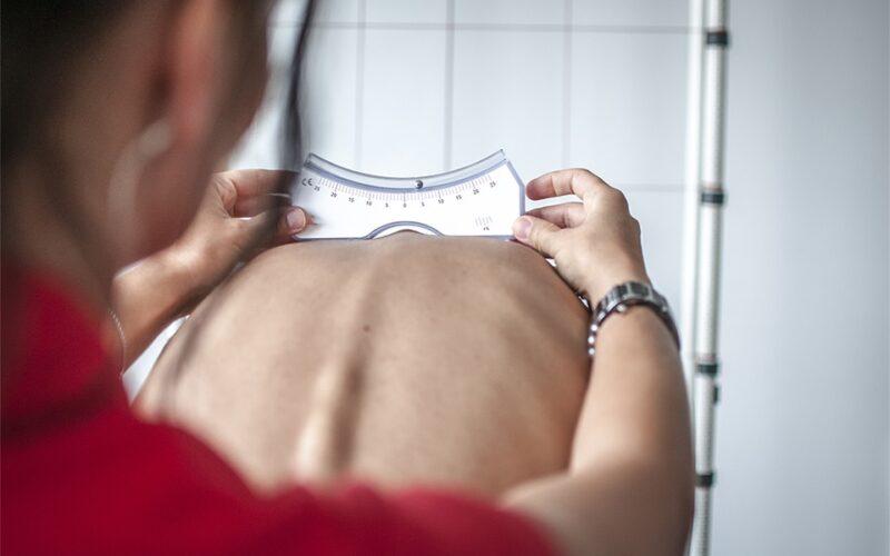 أعراض انحراف العمود الفقري عند الأطفال والبالغين