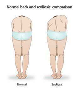 اعراض الجنف