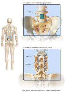 جراحة العمود الفقري